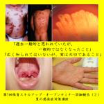 【第7回保育スキルアップ・セミナー開催報告(2)】夏の感染症 保育所での対策はこれでバッチリ!