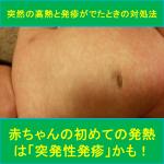 赤ちゃんの初めての発熱は「突発性発疹」かも!突然の高熱と発疹がでたときの対処法